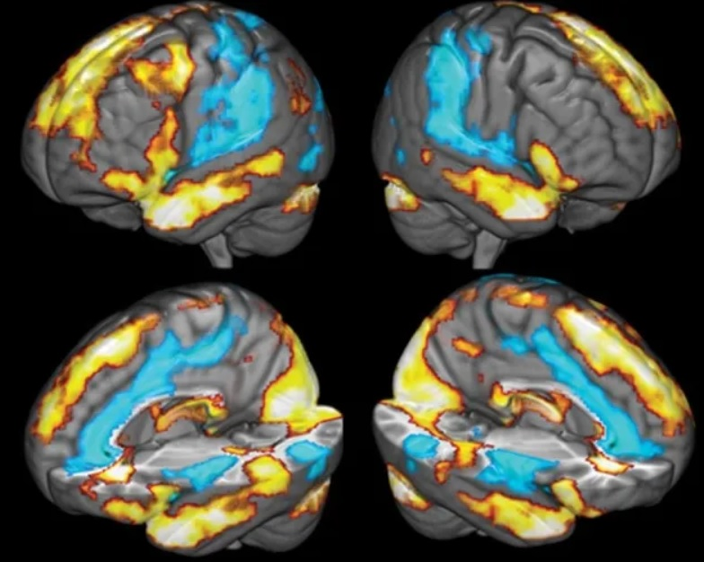 Dėkingumas ir smegenys